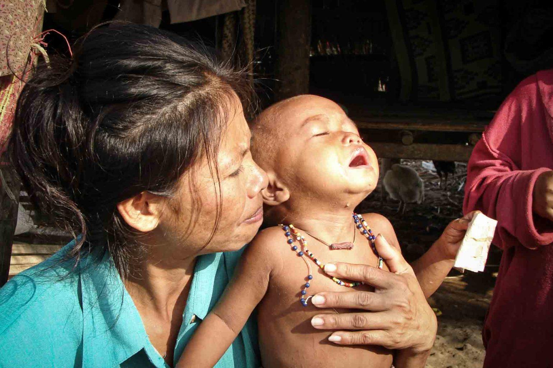 Petit garçon dans une grande souffrance localisé par nos volontaires au Cambodge. Dans les cas les plus difficiles, nous accueillons les enfants dans notre centre de protection de l'enfance de Battambang.